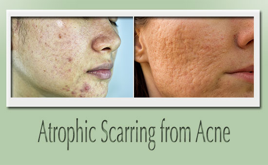2 images of atrophic scarring caused by acne
