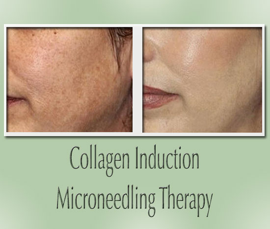 A before and after image of collagen induction microneedling effects