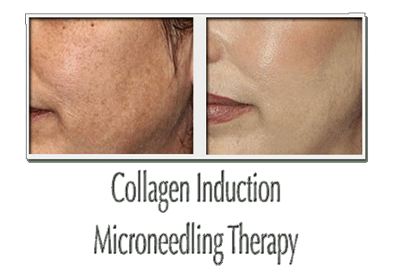Before and after photos of collagen induction therapy results