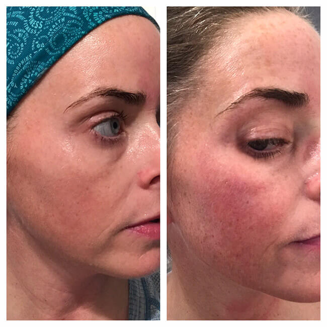 IPL_photofacial_before_after (2)