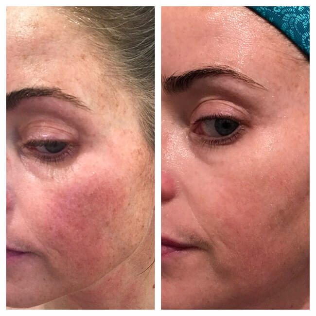 IPL_photofacial_before_after (3)